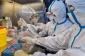 Koronavirus ən çox bu xəstəliklərdən əziyyət çəkənləri öldürür - STATİSTİKA