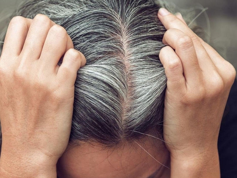 Hansı vitamin çatışmazlığı saç ağarmasına səbəb olur?