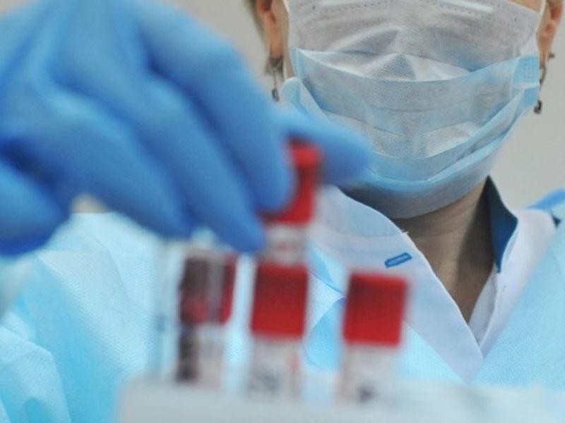 Rusiya koronavirusa qalib gəldi