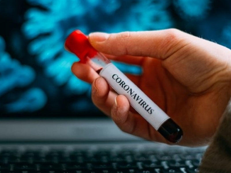 Karantin müddəti koronavirus ölümcül olduğu üçün deyil - AÇIQLAMA