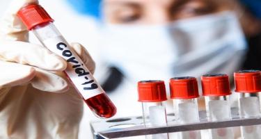Azərbaycanda 117 nəfər koronavirusa yoluxdu, 135 nəfər sağaldı - FOTO