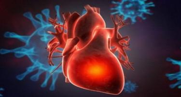 Virus ürəyin zədələnməsi və ürək-damar ağırlaşmalarına da səbəb ola bilər- Mütəxəssisdən XƏBƏRDARLIQ!