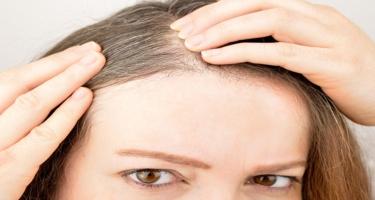 Saçların erkən ağarmasının səbəbləri: Soyuq havada nə etmək lazımdır?