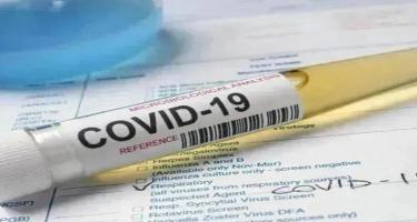 Ermənistanda COVID-19-a yoluxanların sayı 211 mini ötüb