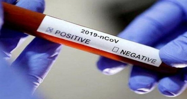 Koronavirus bir insana İKİNCİ DƏFƏ yoluxurmu? - Mütəxəssislər SON NÖQTƏNİ QOYDU