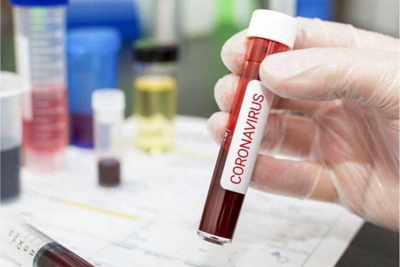 Azərbaycanda bugünün koronavirus statistikası